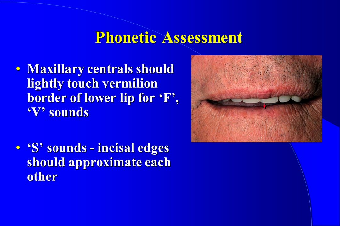 Phonetic Assessment Maxillary centrals should lightly touch vermilion border of lower lip for F, V soundsMaxillary centrals should lightly touch vermilion border of lower lip for F, V sounds S sounds - incisal edges should approximate each otherS sounds - incisal edges should approximate each other