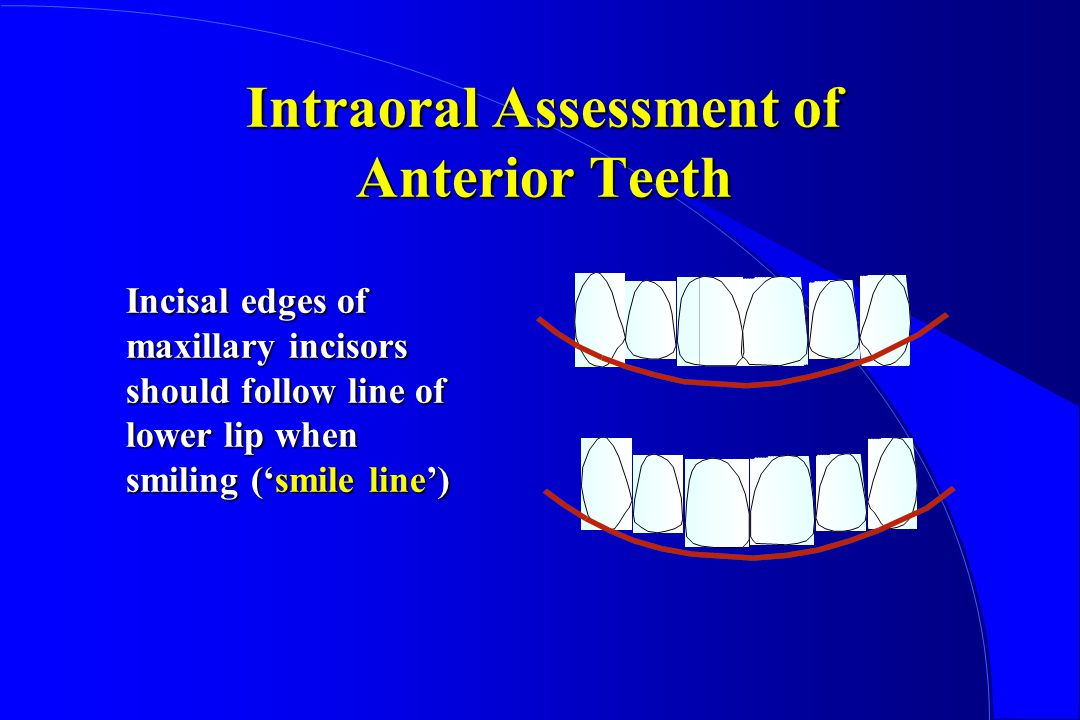 Intraoral Assessment of Anterior Teeth Incisal edges of maxillary incisors should follow line of lower lip when smiling (smile line)