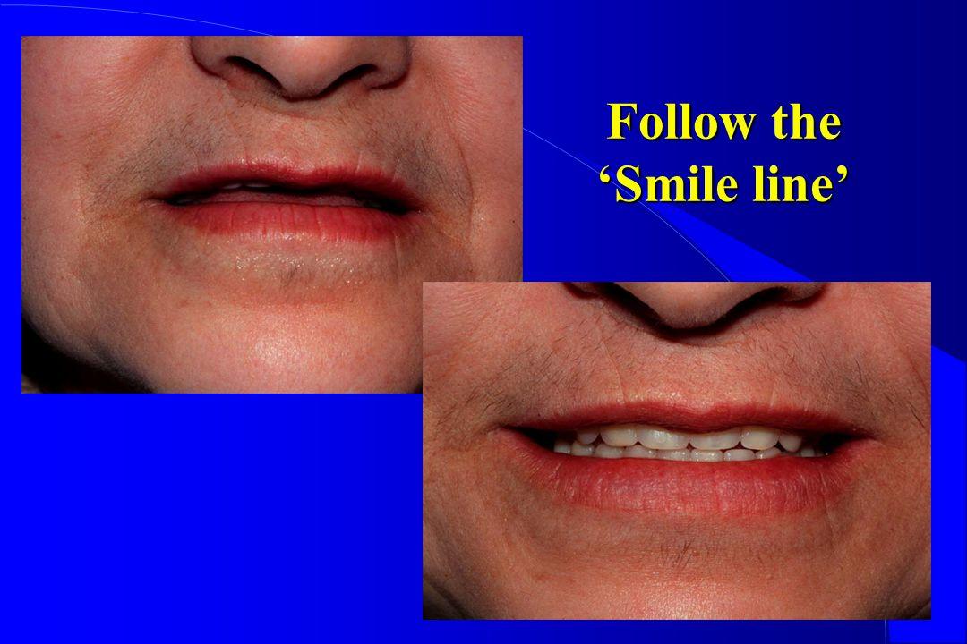 Follow the Smile line