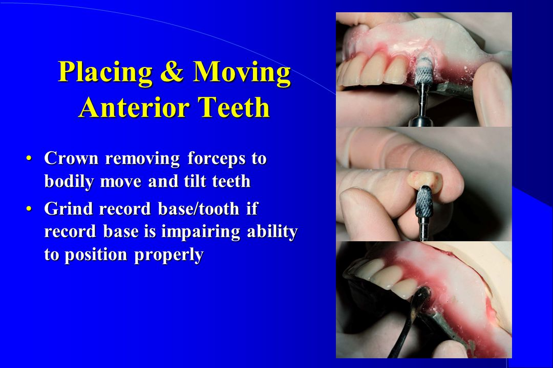 Placing & Moving Anterior Teeth Crown removing forceps to bodily move and tilt teethCrown removing forceps to bodily move and tilt teeth Grind record base/tooth if record base is impairing ability to position properlyGrind record base/tooth if record base is impairing ability to position properly