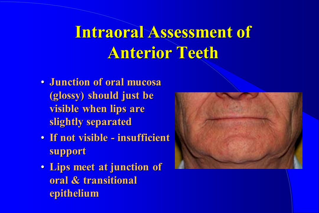 Intraoral Assessment of Anterior Teeth Junction of oral mucosa (glossy) should just be visible when lips are slightly separatedJunction of oral mucosa (glossy) should just be visible when lips are slightly separated If not visible - insufficient supportIf not visible - insufficient support Lips meet at junction of oral & transitional epitheliumLips meet at junction of oral & transitional epithelium