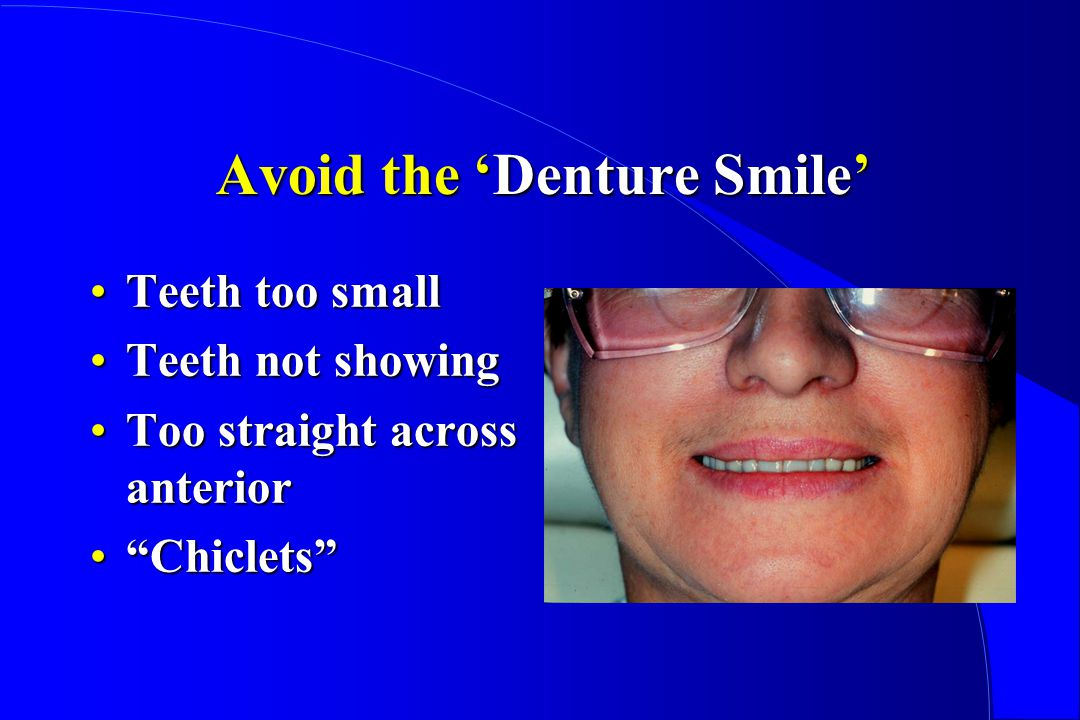 Avoid the Denture Smile Teeth too smallTeeth too small Teeth not showingTeeth not showing Too straight across anteriorToo straight across anterior ChicletsChiclets