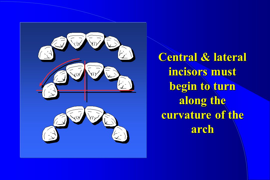 Central & lateral incisors must begin to turn along the curvature of the arch