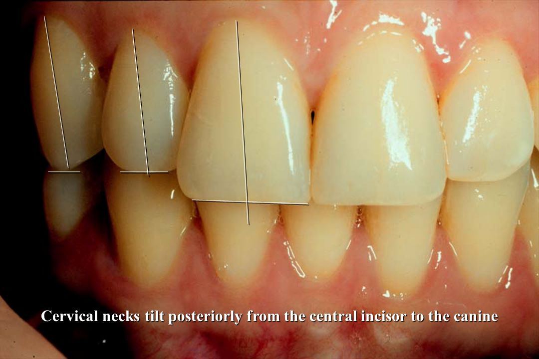 Cervical necks tilt posteriorly from the central incisor to the canine