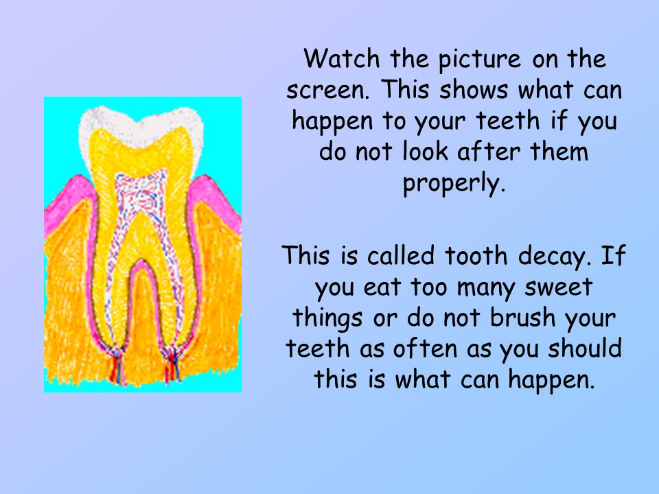 Watch the picture on the screen. This shows what can happen to your teeth if you do not look after them properly. This is called tooth decay. If you e