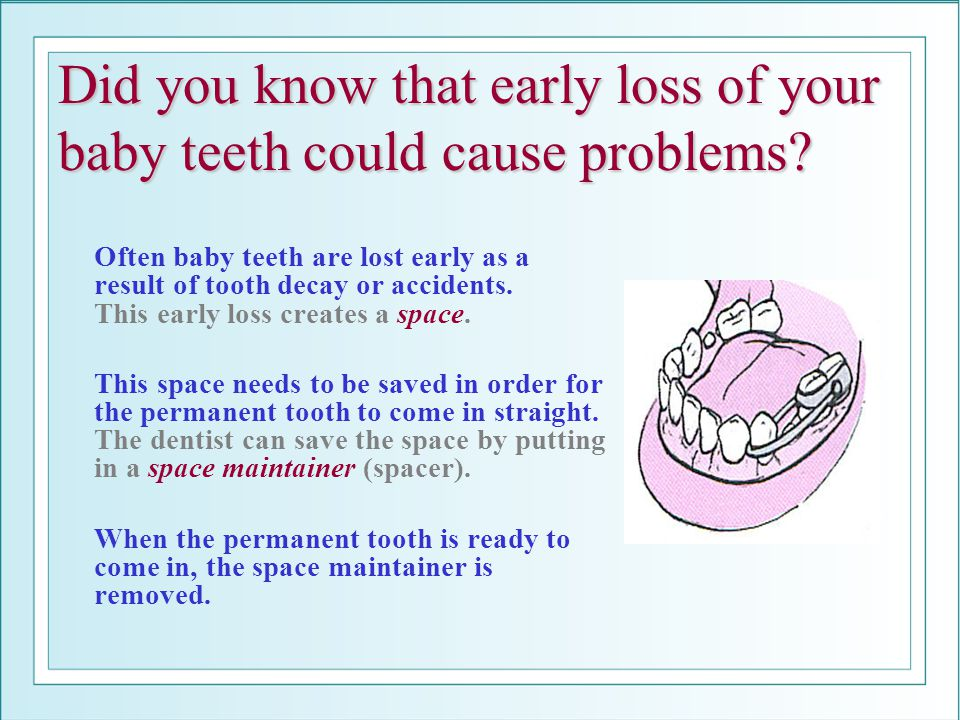 Did you know that early loss of your baby teeth could cause problems? Often baby teeth are lost early as a result of tooth decay or accidents. This ea