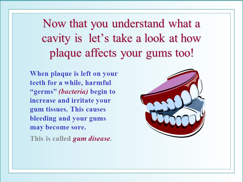 Now that you understand what a cavity is lets take a look at how plaque affects your gums too! When plaque is left on your teeth for a while, harmful