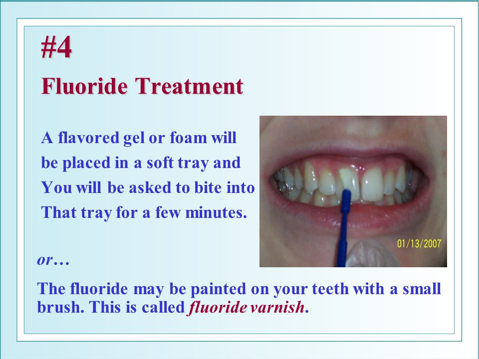 #4 Fluoride Treatment A flavored gel or foam will be placed in a soft tray and You will be asked to bite into That tray for a few minutes. or… The flu