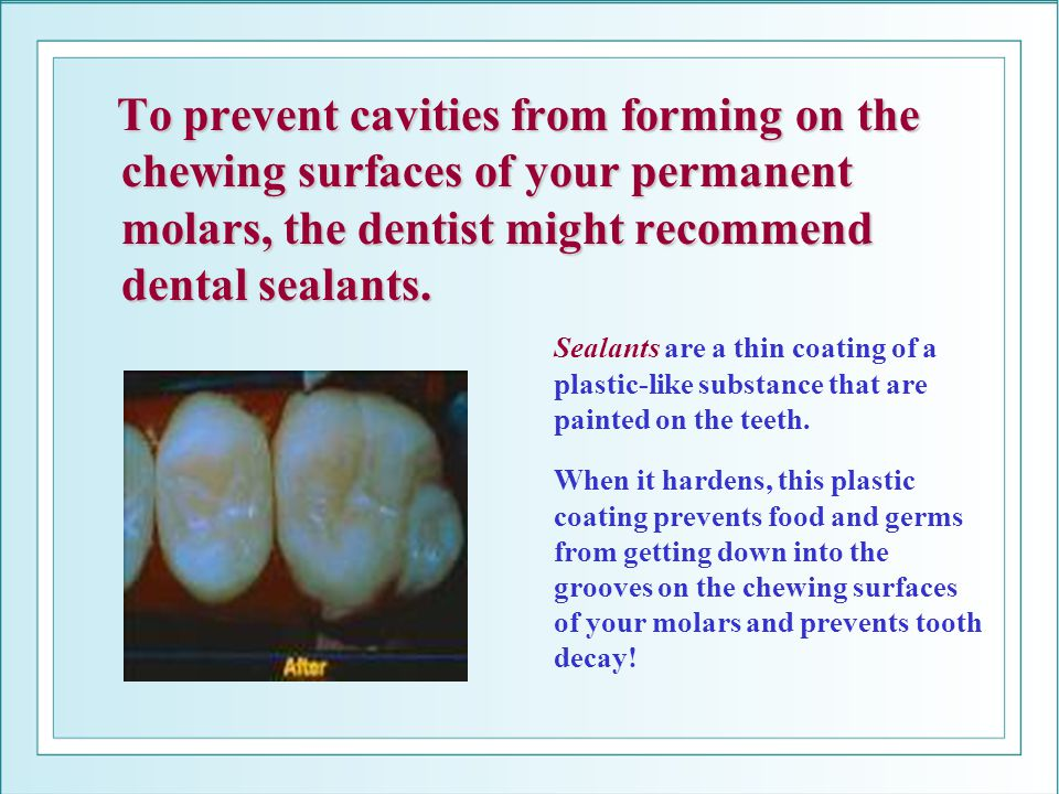 To prevent cavities from forming on the chewing surfaces of your permanent molars, the dentist might recommend dental sealants. Sealants are a thin co
