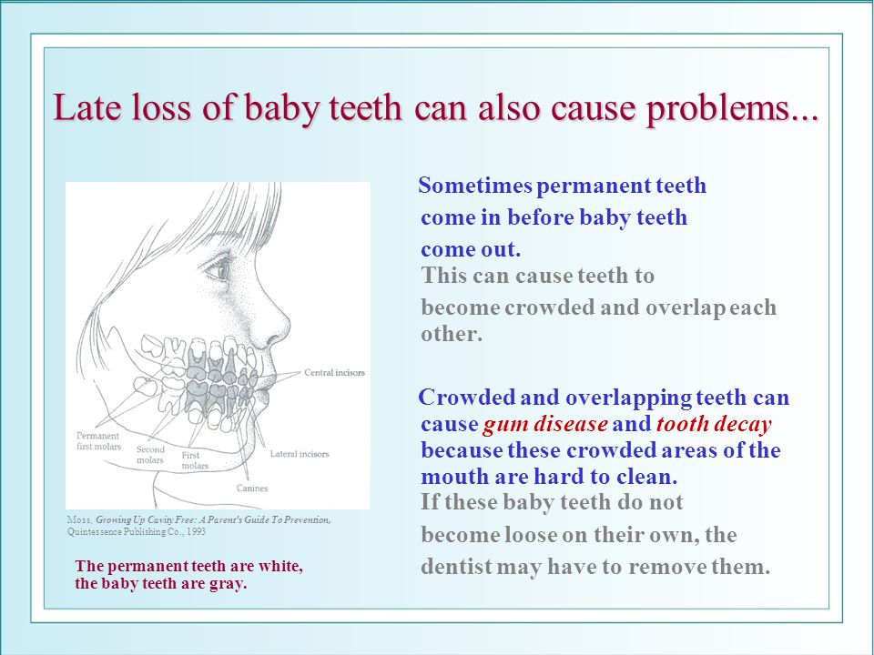 Late loss of baby teeth can also cause problems... Sometimes permanent teeth come in before baby teeth come out. This can cause teeth to become crowde