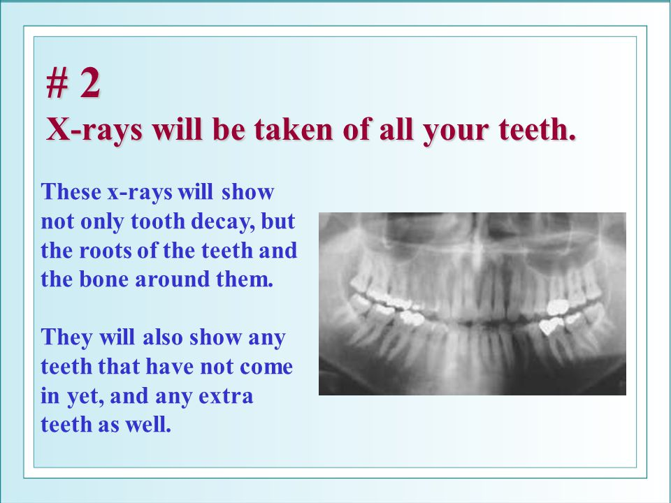 # 2 X-rays will be taken of all your teeth. These x-rays will show not only tooth decay, but the roots of the teeth and the bone around them. They wil