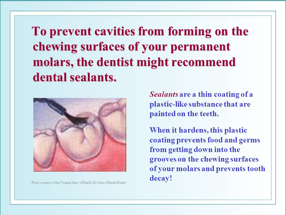 To prevent cavities from forming on the chewing surfaces of your permanent molars, the dentist might recommend dental sealants.