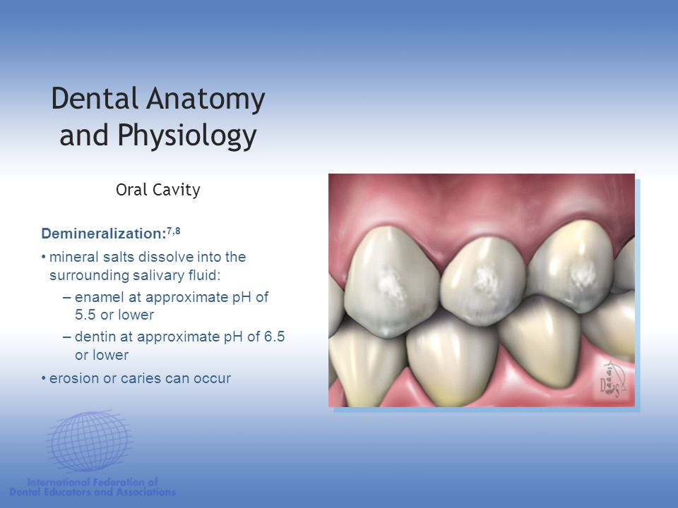 Dental Anatomy and Physiology Demineralization: 7,8 mineral salts dissolve into the surrounding salivary fluid: –enamel at approximate pH of 5.5 or lo