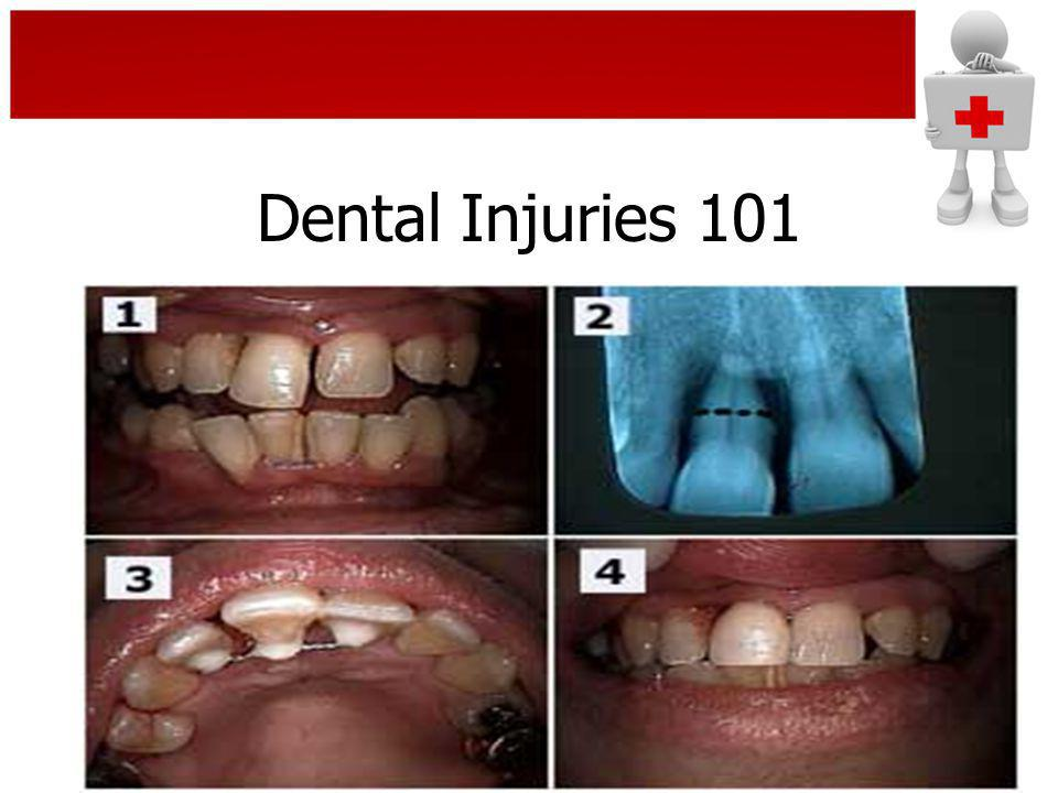 Dental Injuries 101