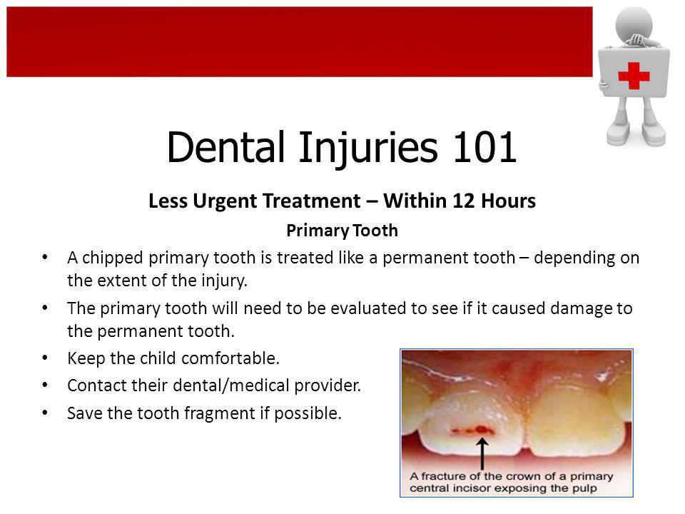 Dental Injuries 101 Less Urgent Treatment – Within 12 Hours Primary Tooth A chipped primary tooth is treated like a permanent tooth – depending on the