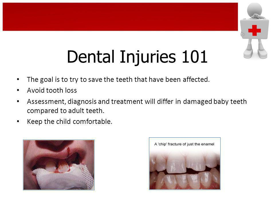 Dental Injuries 101 Less Urgent Treatment – Within 12 Hours Primary Tooth A chipped primary tooth is treated like a permanent tooth – depending on the extent of the injury.