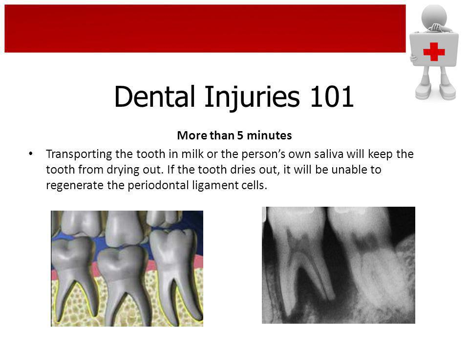 Dental Injuries 101 More than 5 minutes Transporting the tooth in milk or the persons own saliva will keep the tooth from drying out. If the tooth dri