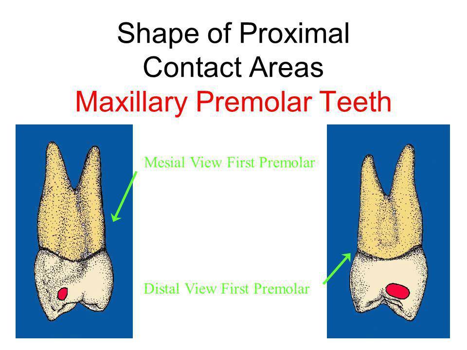 Shape of Proximal Contact Areas Maxillary Premolar Teeth Mesial View First Premolar Distal View First Premolar