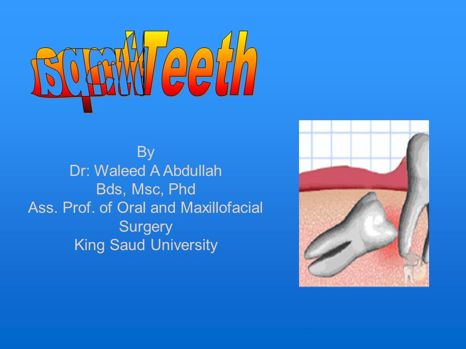 Definition :- is a tooth that fails to erupt into its normal functioning position in the dental arch within the expected time.