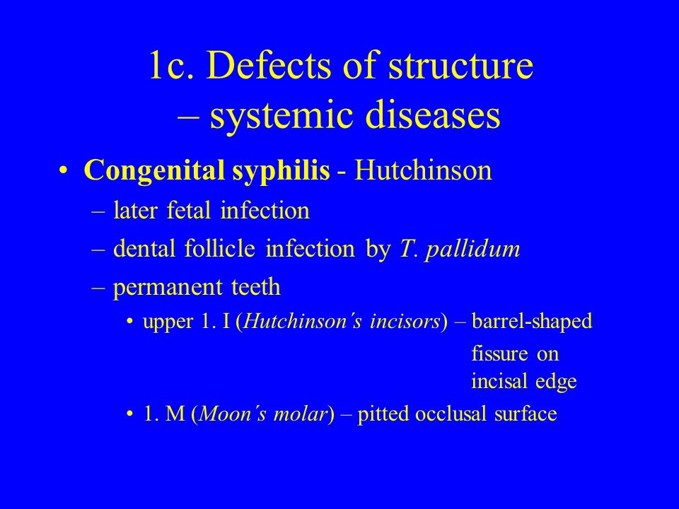 1c. Defects of structure – systemic diseases Congenital syphilis - Hutchinson –later fetal infection –dental follicle infection by T. pallidum –perman