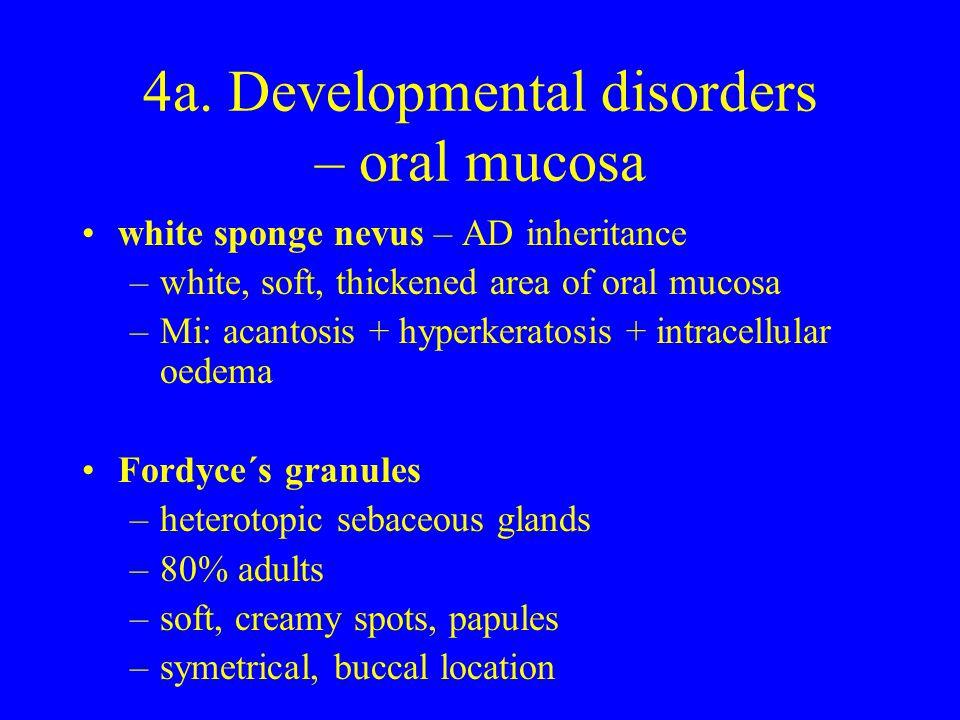 4a. Developmental disorders – oral mucosa white sponge nevus – AD inheritance –white, soft, thickened area of oral mucosa –Mi: acantosis + hyperkerato
