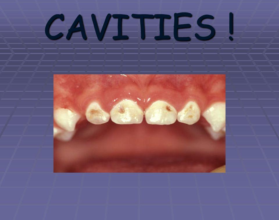 CAVITIES !