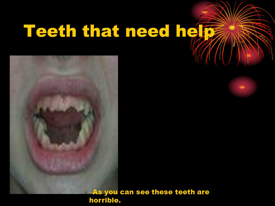 Teeth that need help – As you can see these teeth are horrible.