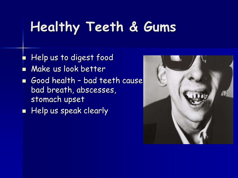 Healthy Teeth & Gums Help us to digest food Help us to digest food Make us look better Make us look better Good health – bad teeth cause bad breath, abscesses, stomach upset Good health – bad teeth cause bad breath, abscesses, stomach upset Help us speak clearly Help us speak clearly