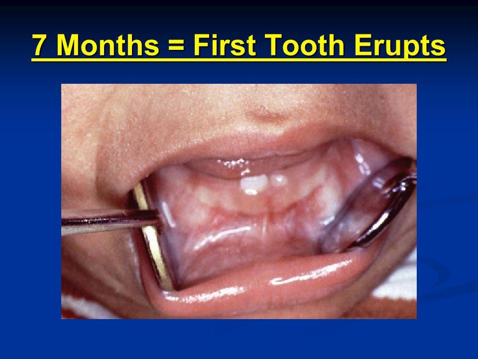 11 Months = 4 Erupted Teeth 7 months + 4 = 11 months 7 months + 4 = 11 months 0 teeth + 4 = 4 teeth 0 teeth + 4 = 4 teeth