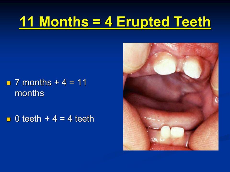 15 Months = 8 Erupted Teeth 11 months + 4 = 15 months 11 months + 4 = 15 months 4 teeth + 4 = 8 teeth 4 teeth + 4 = 8 teeth