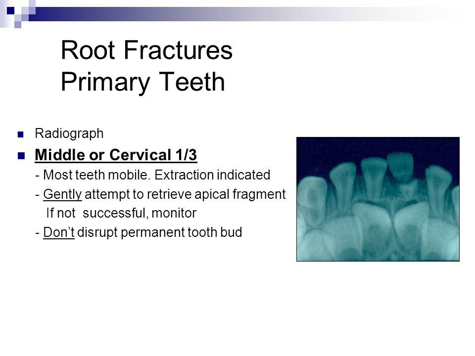 Root Fractures Primary Teeth Radiograph Middle or Cervical 1/3 - Most teeth mobile. Extraction indicated - Gently attempt to retrieve apical fragment