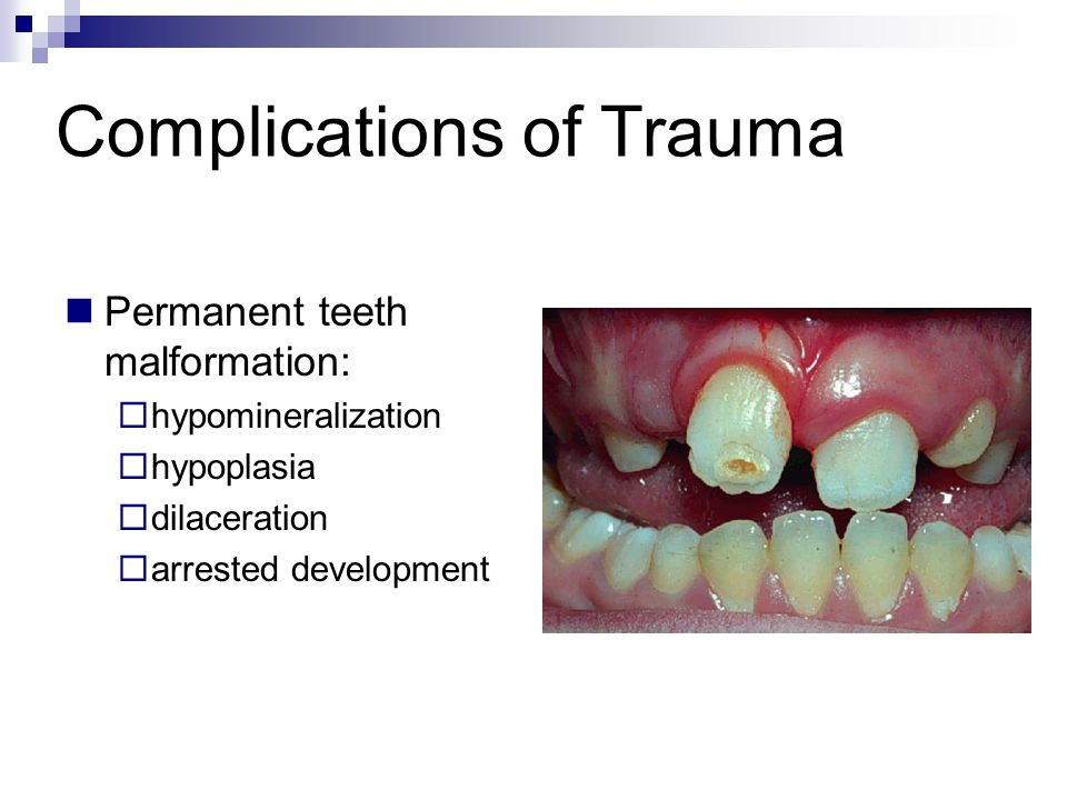 Complications of Trauma Permanent teeth malformation: hypomineralization hypoplasia dilaceration arrested development