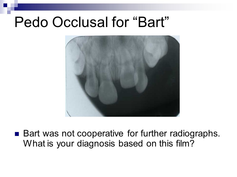 Pedo Occlusal for Bart Bart was not cooperative for further radiographs. What is your diagnosis based on this film?