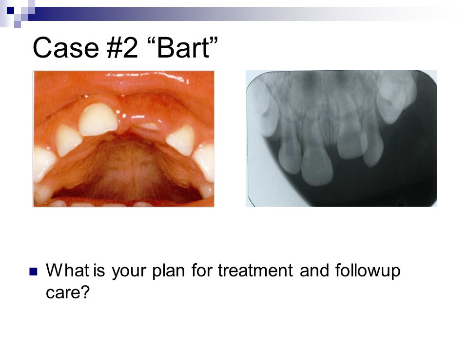 Case #2 Bart What is your plan for treatment and followup care?