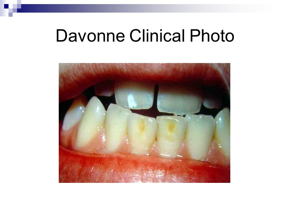 Davonne Clinical Photo