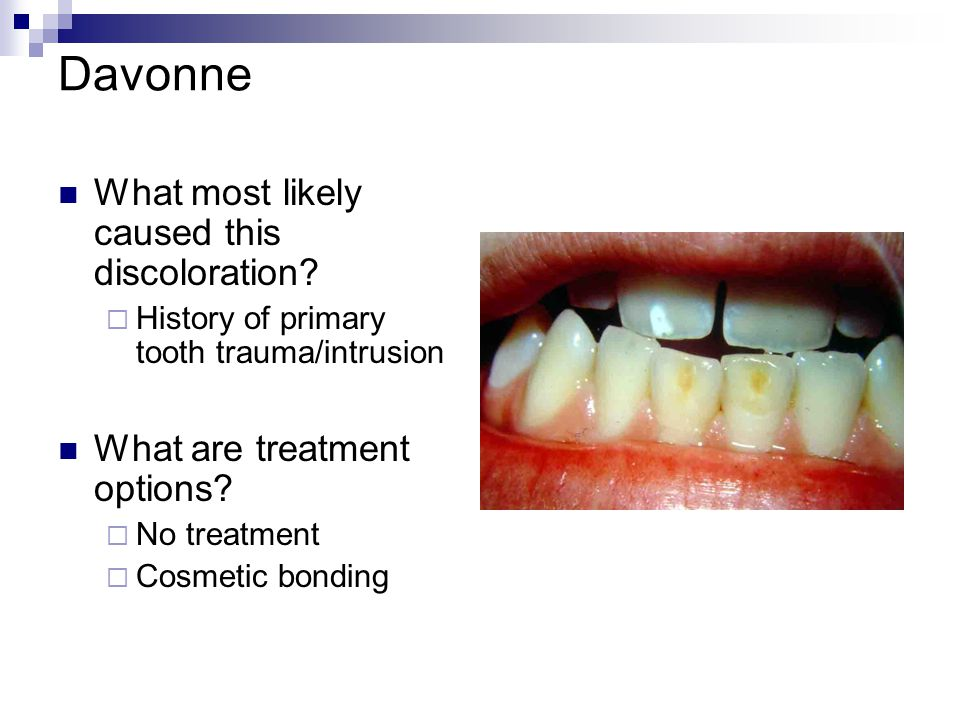 Davonne What most likely caused this discoloration? History of primary tooth trauma/intrusion What are treatment options? No treatment Cosmetic bondin