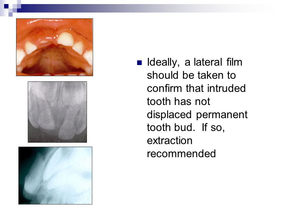 Ideally, a lateral film should be taken to confirm that intruded tooth has not displaced permanent tooth bud. If so, extraction recommended