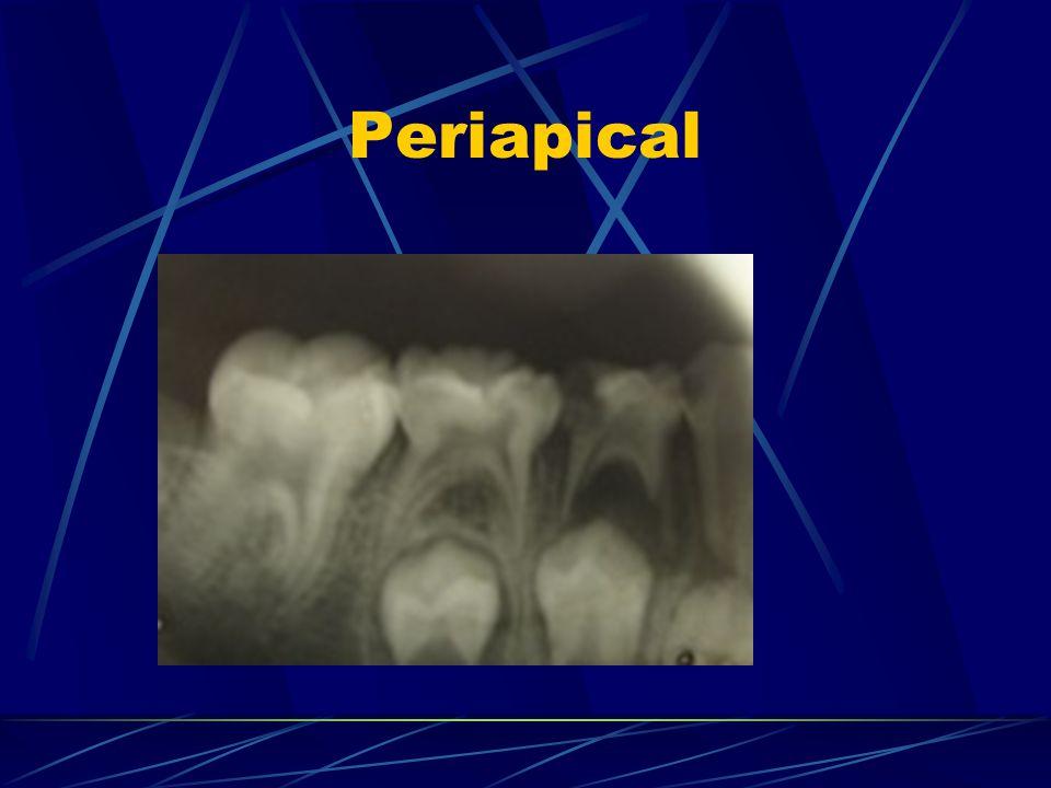 Periapical