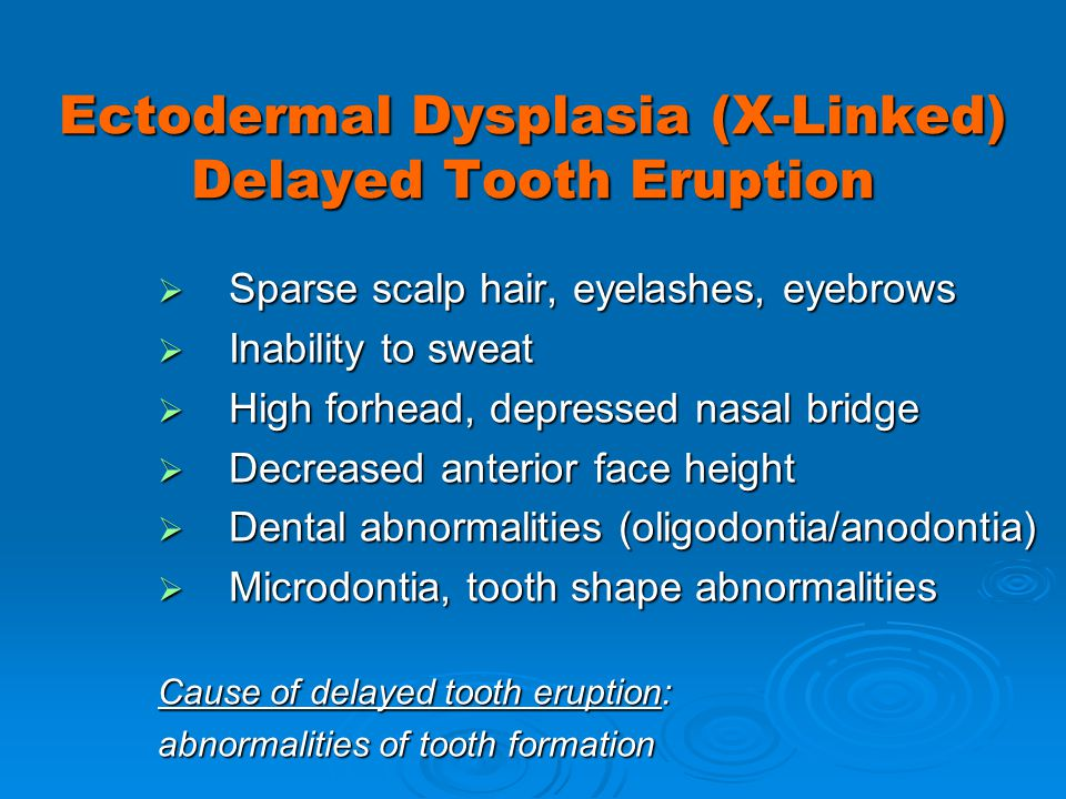 Ectodermal Dysplasia (X-Linked) Delayed Tooth Eruption Sparse scalp hair, eyelashes, eyebrows Sparse scalp hair, eyelashes, eyebrows Inability to swea