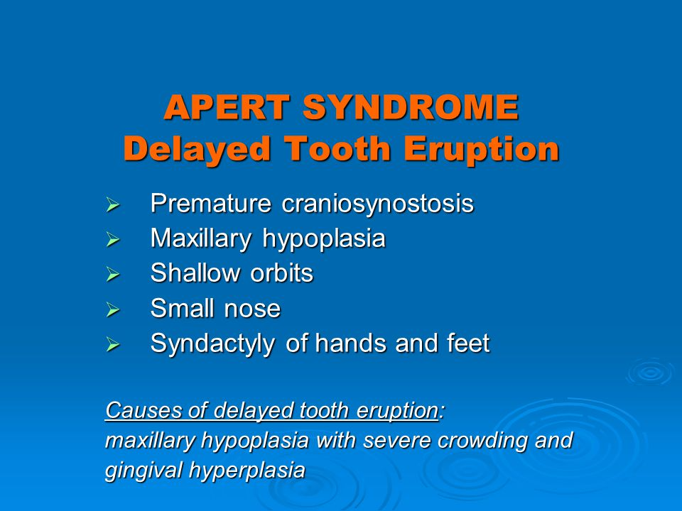 APERT SYNDROME Delayed Tooth Eruption Premature craniosynostosis Premature craniosynostosis Maxillary hypoplasia Maxillary hypoplasia Shallow orbits S