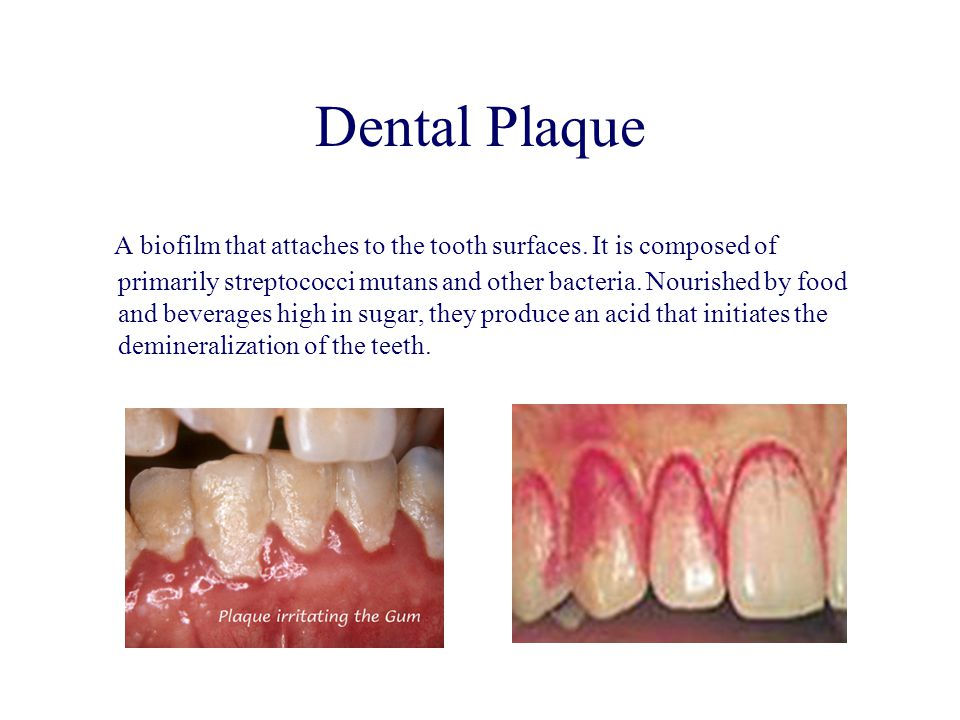 Dental Plaque A biofilm that attaches to the tooth surfaces. It is composed of primarily streptococci mutans and other bacteria. Nourished by food and