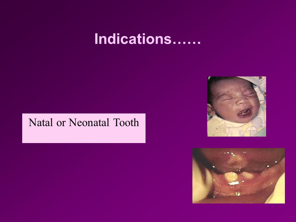 Indications…… Submerged (ankylosed) teeth Over retained primary teeth