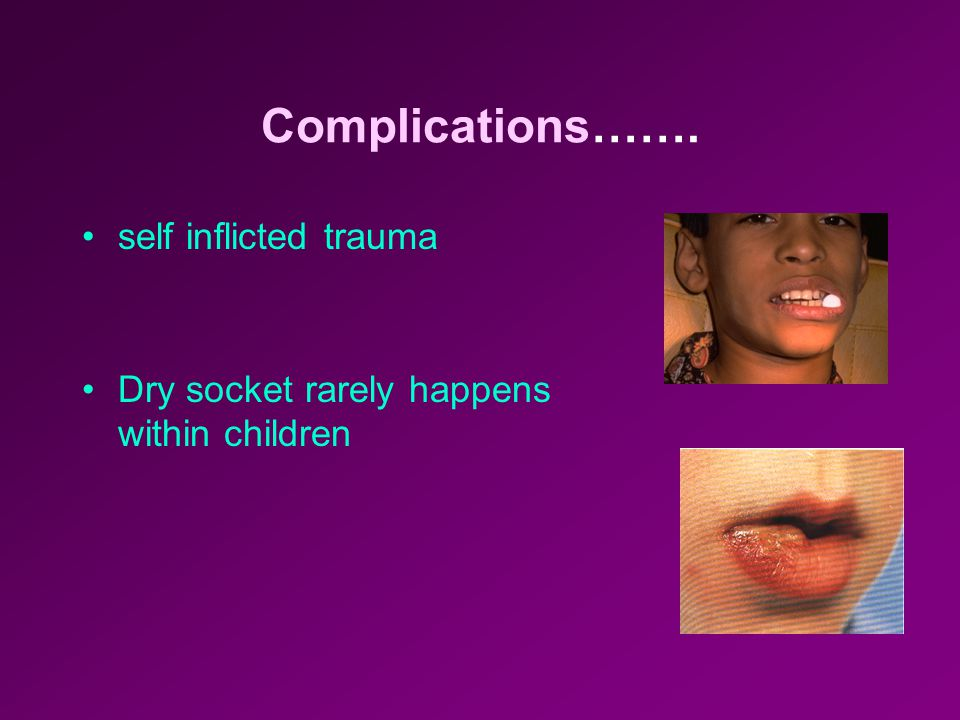 Post -operative Complications Aspiration or swallowing of teeth or roots may occur, especially under general anesthesia with the mouth forced open Pos