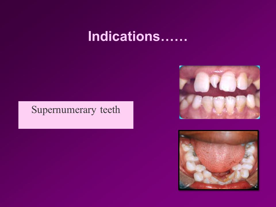 Indications…… Carious/ fractured non restorable tooth