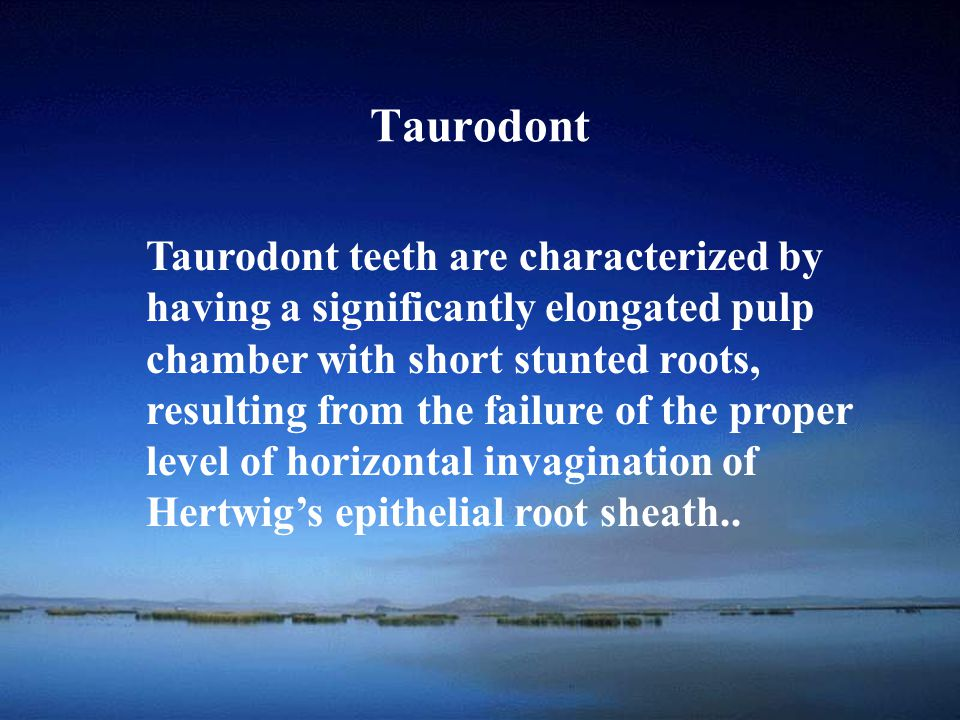 School of Taurodont teeth are characterized by having a significantly elongated pulp chamber with short stunted roots, resulting from the failure of t
