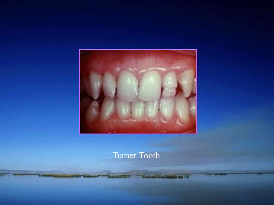 School of Turner Tooth