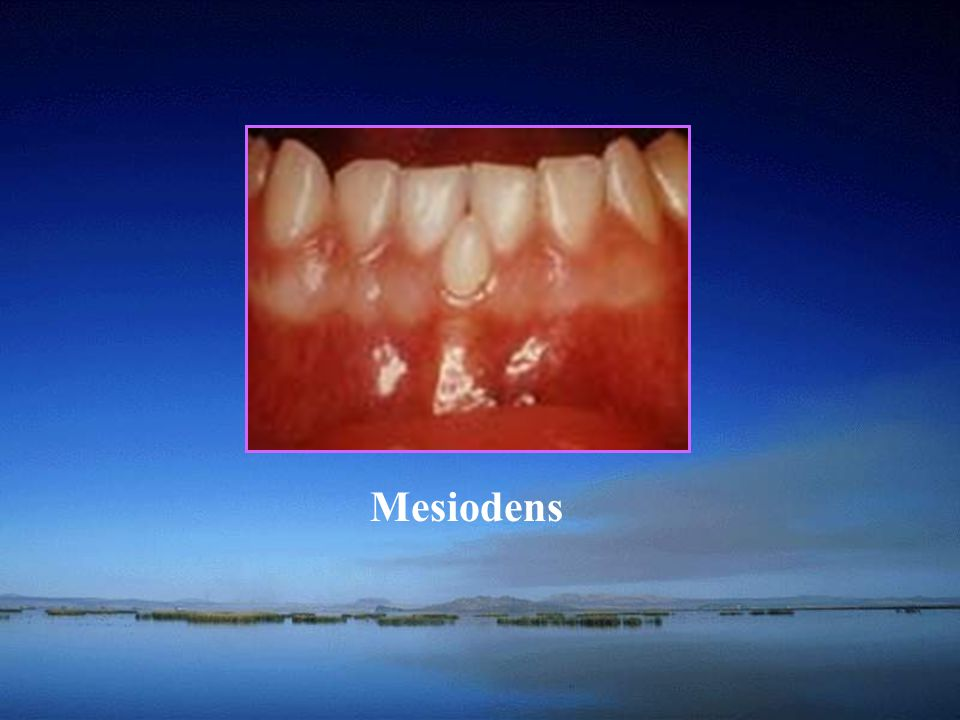 School of A condition resulting from the invagination of the inner enamel epithelium producing the appearance of a tooth within a tooth.