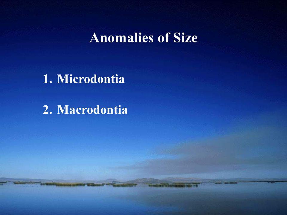 School of Anomalies of Shape 1.Gemination 2.Fusion 3.Concrescence 4.Dilaceration 5.Enamel Pearl (enameloma) 6.Talon Cusp 7.Taurodontism 8.Dens in Dente (dens invaginatus) 9.Dens Evaginatus 10.Supernumerary Roots 11.Hypercementosis