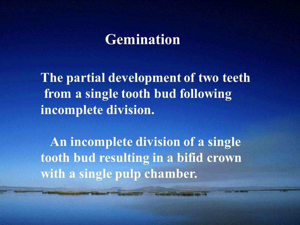 School of Gemination
