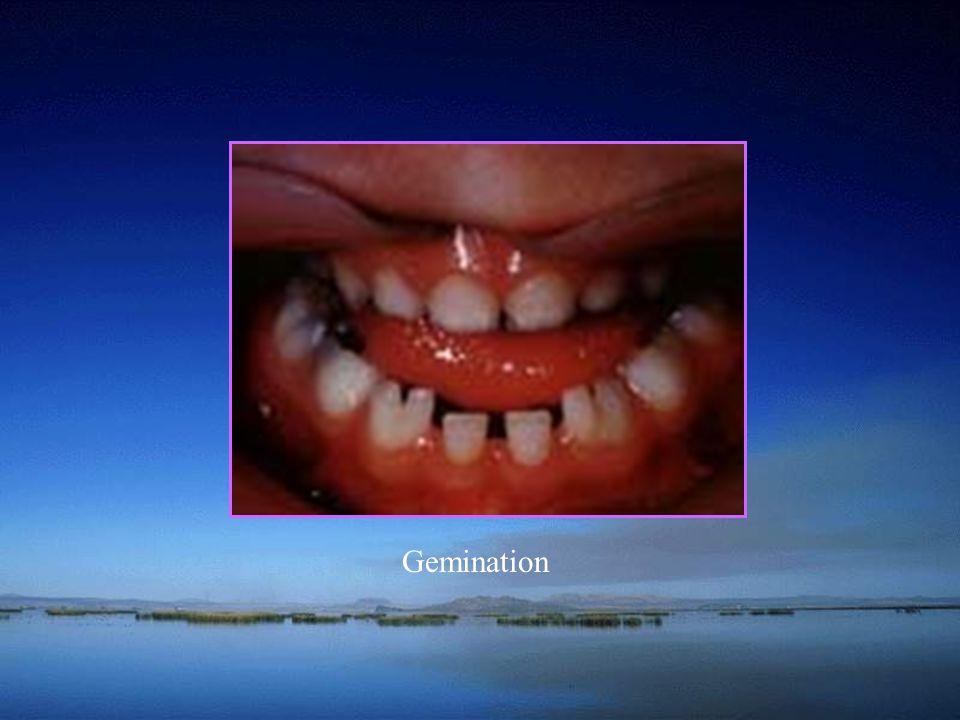 School of Hutchinson teeth